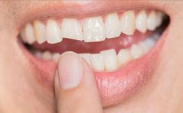 Ugly smile dental problem