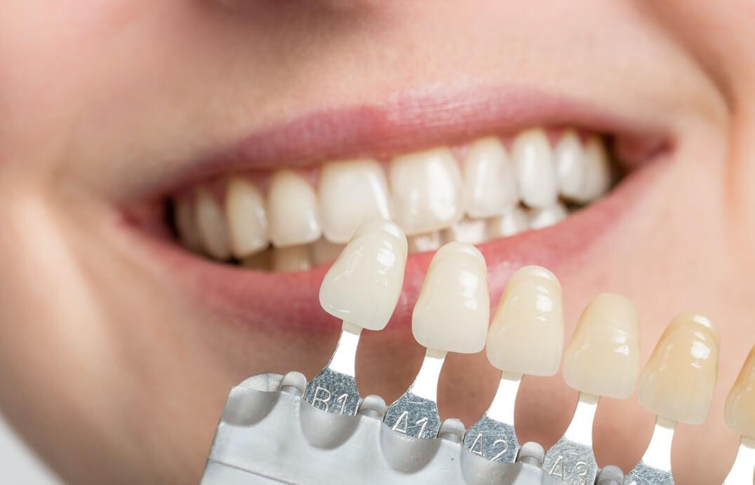 Step 1 – Prepping the Teeth