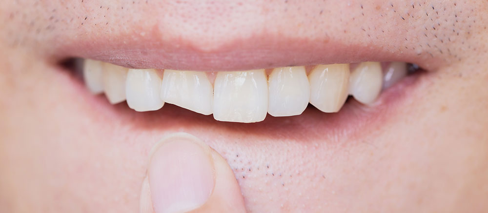 care for broken tooth